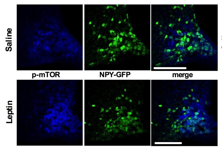 Neurônios impedem queima de gordura quando fazemos dieta