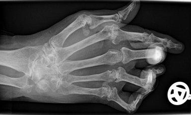 Artrite reumatoide precisa ser dividida entre tipo 1 e tipo 2, dizem médicos