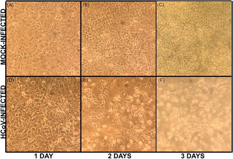 Enxaguante bucal inativa coronavírus em poucos segundos