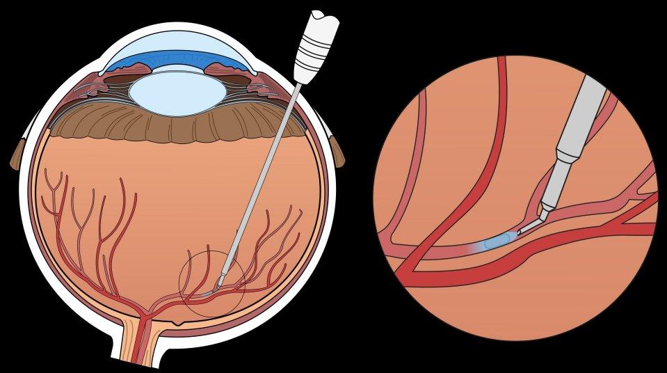 Robô-cirurgião opera veia dentro do olho e evita cegueira