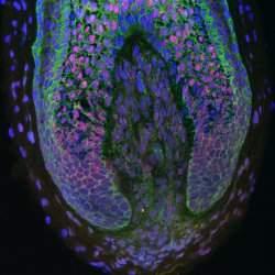 Cura da calvície? Cabelo é cultivado em laboratório pela primeira vez