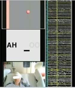 Implante neural faz cérebro falar com computador