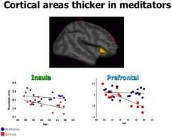 Meditação altera estrutura do cérebro em oito semanas