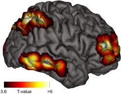 Sonhos lúcidos dão pistas sobre a consciência no cérebro