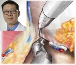 Como escolher um médico para operar o câncer de próstata?