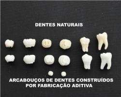 Dente artificial pode acabar com dentaduras