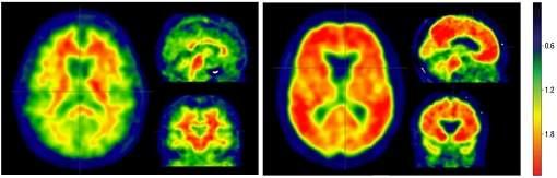 Não é apenas amiloide: Alzheimer depende de fator que pode ser prevenido