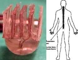 Implante espinhal permite exercitar membros paralisados