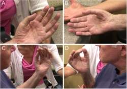 Mão robótica ou mão natural? Pacientes paralisados reconquistam movimentos