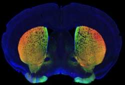 Principal teoria sobre Mal de Parkinson é contestada