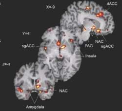 Pessoas altruístas têm mais benefícios do efeito placebo