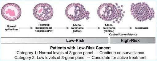 Descoberta mutação genética ligada a câncer de próstata hereditário