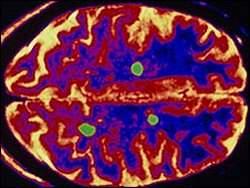 Regeneração do cérebro usa células-tronco contra esclerose múltipla