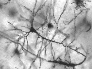 Restrição calórica beneficia o cérebro